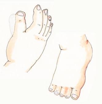 多合指·巨指症